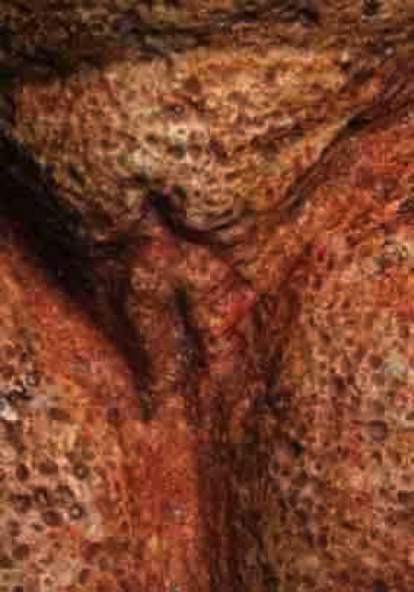 Blutende Vulva