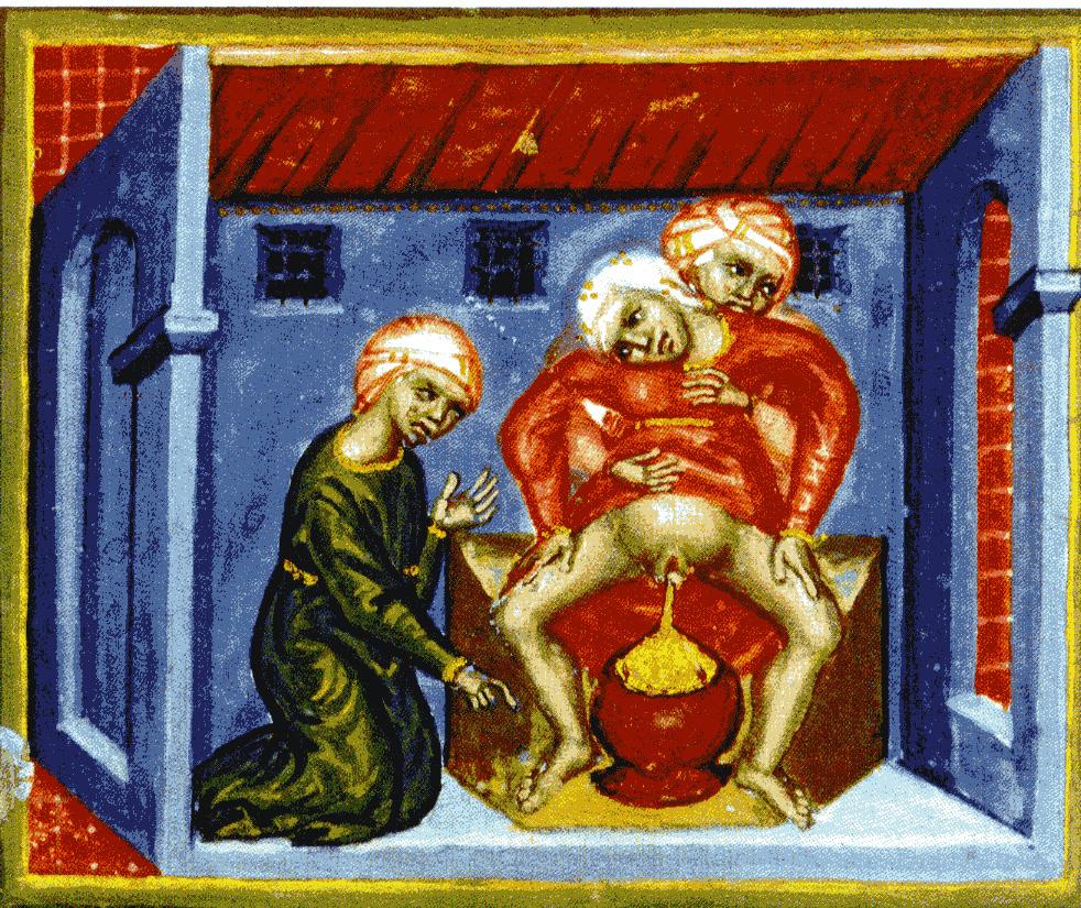Nachgeburtsszene auf einer Miniatur des späten 14. Jahrhunderts (Nationalbibliothek Wien)